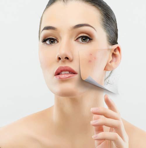 Bật mí 6 mẹo đơn giản giúp chị em cải thiện làn da một cách tự nhiên6